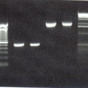 Ergenisse der PCR